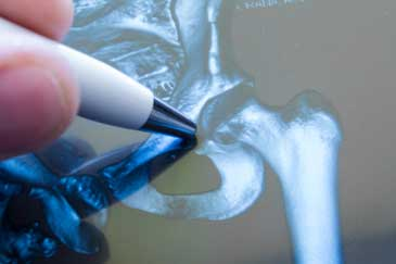 direct anterior hip replacement, orthopedic services