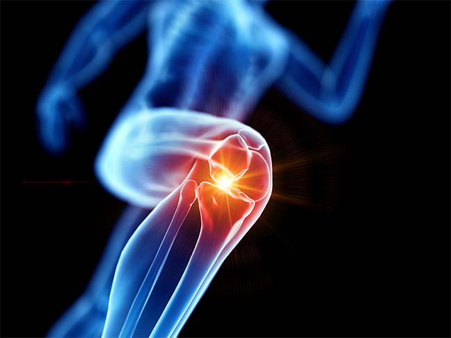 knee replacement surgeries